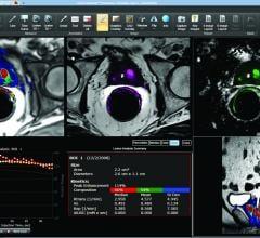 Netherlands Cancer Institute Exploring Molecular Imaging Technology for Prostate Cancer Surgery