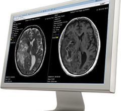 SyMRI, MD Anderson Cancer Center, brain tumor characterization