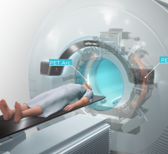 MERCK and RefleXion Medical announced a collaboration to evaluate KETRUDA (immunotherapy) with biology-guided radiotherapy - BgRT -  a new radiation machine developed to treat all stages of cancer.