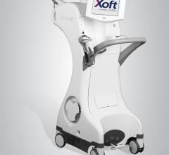 Xoft Electronic Brachytherapy System Effective Long-Term for Early-Stage Breast Cancer