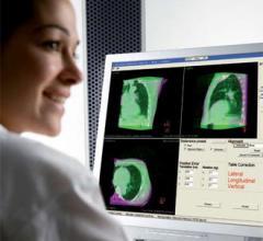 tumor localization systems, tumor localization, elekta, radiation therapy