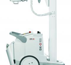 Agfa DX-D 100