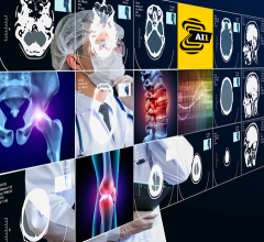 Building on its commitment to providing customers with artificial intelligence (AI) solutions that can be utilized across modalities in routine care,Canon Medical Systems USA, Inc.is partnering withZebra MedicalVision to offer its AI1 automated imaging analysis solutions to help clinicians in the U.S. provide faster, accurate diagnoses for optimized patient care