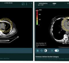 Zebra Medical Vision now offers artificial intelligence (A) medical imaging analytics for its cardiac solution HealthCCSng, which enables the quantification of the coronary artery calcium (CAC) on CT scans as an incidental finding.