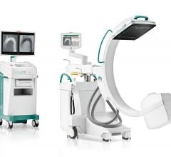 Ziehm Imaging will showcase its leading portfolio of mobile C-arms and advanced pre- and intraoperative image-based decision support solutions on its virtual RSNA 2020 booth