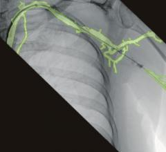 An example of the 3-D vascular roadmapping technology on the Ziehm mobile C-arm systems.
