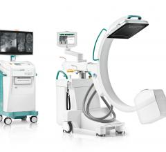 The solution, presented at RSNA20, features image fusion and endovascular 3D navigation