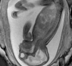 Prenatal MRI of a Zika fetus showing enlarged cerebral fluid space, dilation of the cerebral ventricles, thinning of brain tissue, poorly developed cerebellum and the absence of brain cortical gyri. (Image coutesy of RSNA)