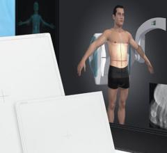 Digital Radiography Systems, RSNA 2014, Thales Artpix Mobile EZ2GO