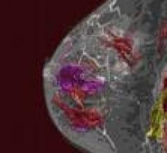 "3T MRI Detects ""Early"" Breast Cancer Not Seen On Mammography, Ultrasound"