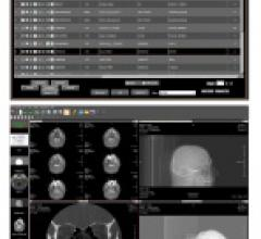 Viztek Opal-Mammo PACS Mammography systems Breast imaging workstations