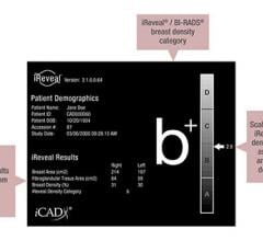 iCAD Featured New Technology for Automated Breast Density Assessment and Showcased Solutions for Tomosynthesis at RSNA 2015