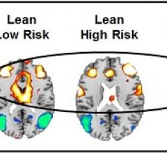 fMRI Study Suggets Childhood Obesity Could Be a Psychological Disorder
