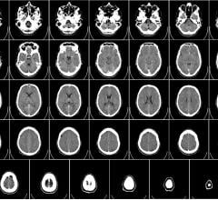 computed tomography brain scan