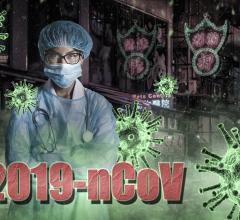 Novel Coronavirus 2019-nCoV Pneumonia. #coronavirus #nCoV2019 #2019nCoV #COVID19