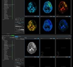 Random Walk Imaging AB (RWI), a company developing novel software solutions for diffusion magnetic resonance imaging (MRI), announced the launch of its first commercial software product for clinical researchers and radiologists.