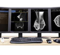 pacs RIS mammography reporting software RSNA women intelerad inteleris