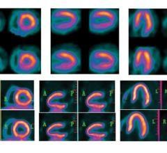 PET vs. SPECT, nuclear imaging advances with BFPET