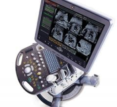 Ultrasound Market Healthy and Growing