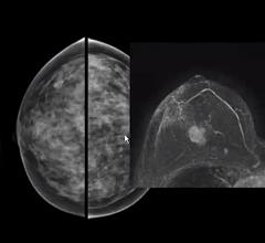 A comparison of a standard mammogram of a woman with dense breast tissue and her breast MRI, clearly showing a cancer that is not visible on the mammogram. Image from Christiane Kuhl, M.D.