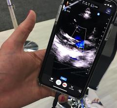 A study of more than 1,000 patients who underwent cardiac ultrasound with the Butterfly POCUS system, which turns smartphones into echo systems, was presented with positive results at the 2019 ASE meeting.