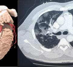 Left, a 3-D rendering of a heart from a cardiac CT exam. Right, a lung-CT exam showing the heart and ground glass lesions in the lungs of a COVID-19 patient. CT has become a front-line imaging modality in the COVID era because it offers both cardiac and lung information to help determine a patients disposition with chest pain, COVID-19 and COVID-caused myocarditis and pulmonary embolism. #COVID19 #CCTfirst #YesCCT