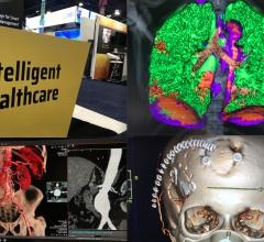 Photos from the HIMSS 2021 conference including new technologies in PACS and CVIS