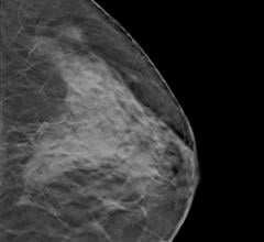 dense breast tissue shown by an ultrasound of breast