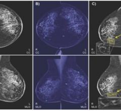IBM collected a dataset of 52,936 images from 13,234 women who underwent at least one mammogram between 2013 and 2017.