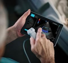 Fujifilm Sonosite took a different route for handheld ultrasound systems with its iViz, used for point of care ultrasound.
