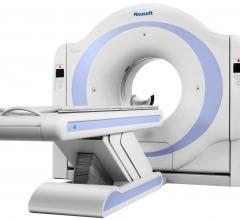 The NeuViz 16 Essence from Neusoft Medical Systems.