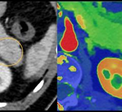 An example of how spectral CT can help aid diagnosis in a pancreatic CT which may have a small lesion, but it is difficult to see. The dual-energy imaging clearly shows a lesion. This is example is from the Philips Spectral CT 7500 system.