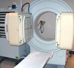 Philips Medical System is recalling its older Forte Gamma Camera SPECT imaging systems due to the possibility of the detectors falling off of the unit onto the patient. The two gamma cameras can bee seen in this photo on either side of the patient bed. These can be rotated above the patient.