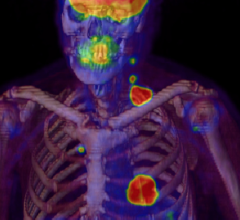 nuclear imaging spect spect/ct IMV