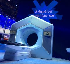 Varian received FDA clearance for its Ethos therapy in February 2020. It is an adaptive intelligence solution that uses onboard AI in the treatment system to take the cone beam CT imaging on the system, compare it to the treatment plan and deliver an entire adaptive treatment plan in a typical 15-minute treatment time slot, from patient setup through treatment delivery.