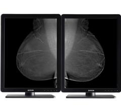Flat panel displays, barco nio, mammography