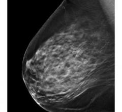 CAD's ProFound AI Improves Efficiency and Accuracy in Breast Cancer Detection
