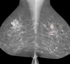 iCAD Introduces ProFound AI for 2D Mammography in Europe