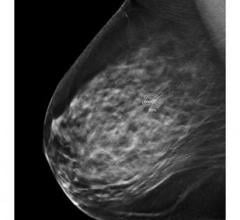 he U.S. Food and Drug Administration (FDA) has issued a final order to reclassify medical image analyzers applied to mammography breast cancer, ultrasound breast lesions, radiograph lung nodules and radiograph dental caries detection, postamendments class III devices (regulated under product code MYN), into class II (special controls), subject to premarket notification