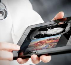Vital Images to Address Specialized Workflow and Efficiency Challenges at SIIM 2017
