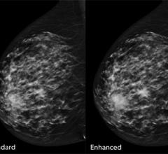concurrent-read cancer detection solution for digital breast tomosynthesis