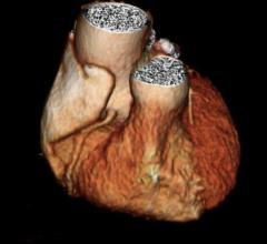 CT Shows Enlarged Aortas in Former Pro Football Players