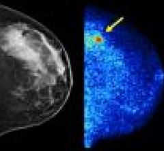 Molecular Imaging to Improve Cancer Detection in Dense Breasts