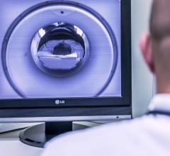 After years of growing popularity, MRI usage fell sharply from 2016 to the next year. Then, in 2018, MRI rebounded, according to the Organization for Economic Cooperation and Development (OECD).