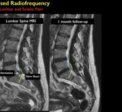 Minimally Invasive Treatment Provides Relief from Back Pain
