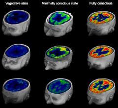 FDG-PET, brain injured patients, awareness, Current Biology study