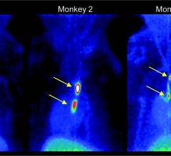 Novel PET Tracer Detects Small Blood Clots