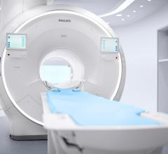 Ingenia Ambition X 1.5T MR. This innovation is the latest advance in the Ingenia MRI portfolio, which comprises fully-digital MRI systems, healthcare informatics and a range of maintenance and life cycle services for integrated solutions that empower a faster, smarter, and simpler path to enabling a confident diagnosis