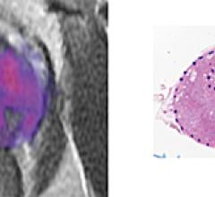 prostate cancer, MRI, RSI, restriction spectrum imaging, tumor grade, UC San Diego study