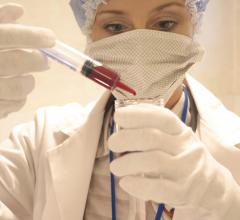 PSA, prostate cancer, AUA, screening, USPSTF